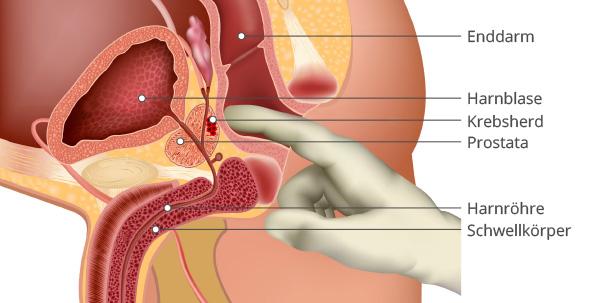 symptome prostata entzündung